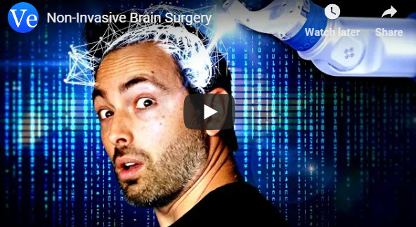 Non-Invasive Brain Surgery